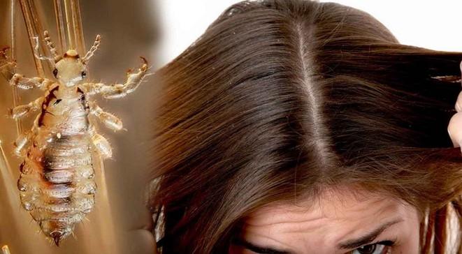 Cara Menghilangkan Kutu Rambut