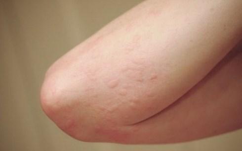 Tes Darah Untuk Alergi