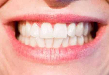 Fakta Tentang Gigi Manusia