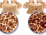 Penyebab Tulang Keropos